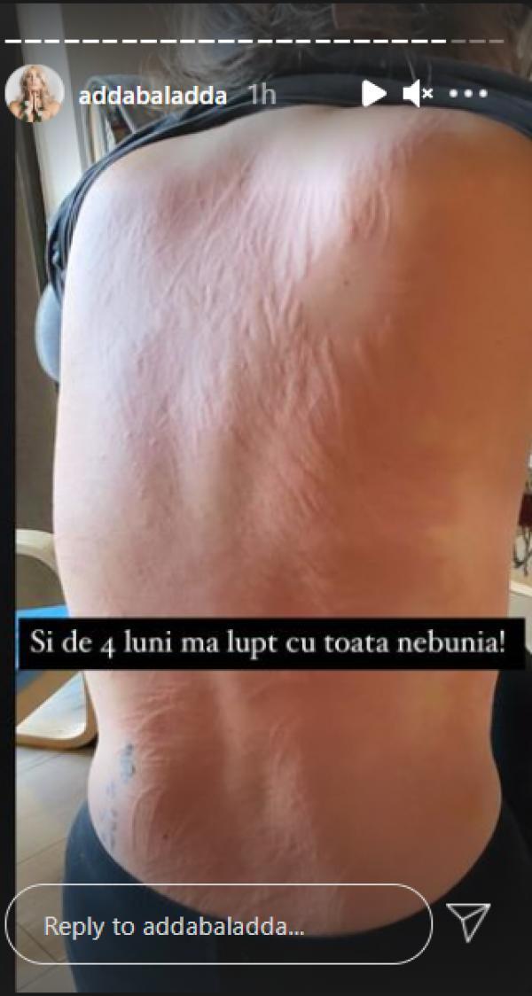 """Adda și-a șocat fanii. Imagini de necrezut cu artista plină de răni: """"Mă lupt cu toată nebunia""""   Spectacola.ro"""